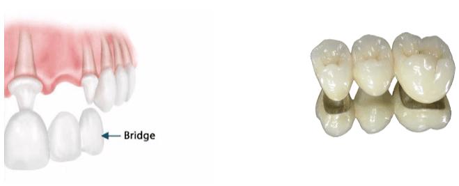 bridge céramique métalique